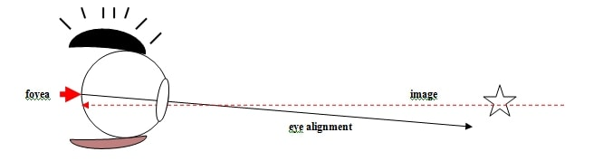 Diagram 2 - BVD - Visual description of Binocular Vision disorder